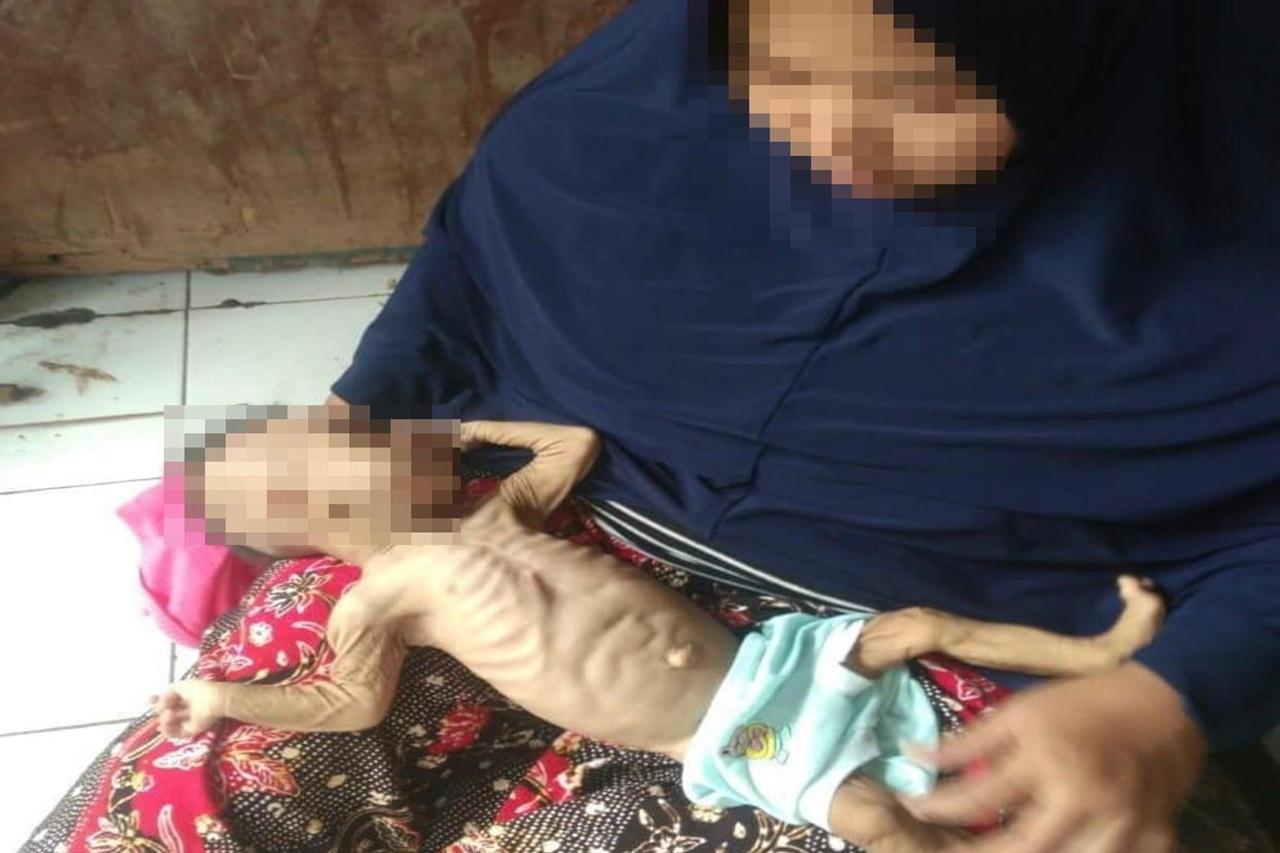 Bayi Sakit Paru-Paru, Kementerian Sosial RI Lakukan Advokasi Kasus