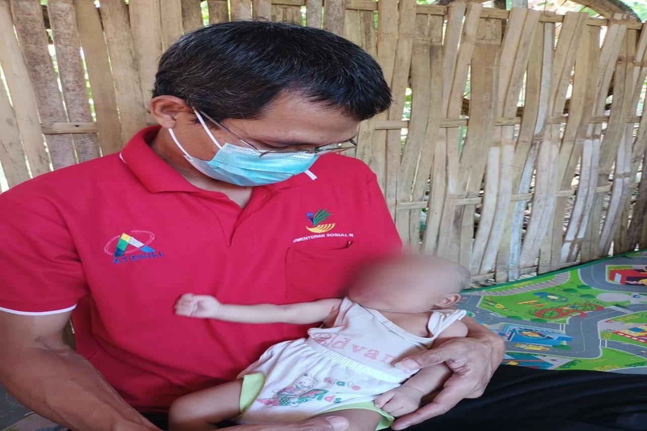 Balai Paramita Kemensos Respon Kasus Bayi dengan Bibir Sumbing