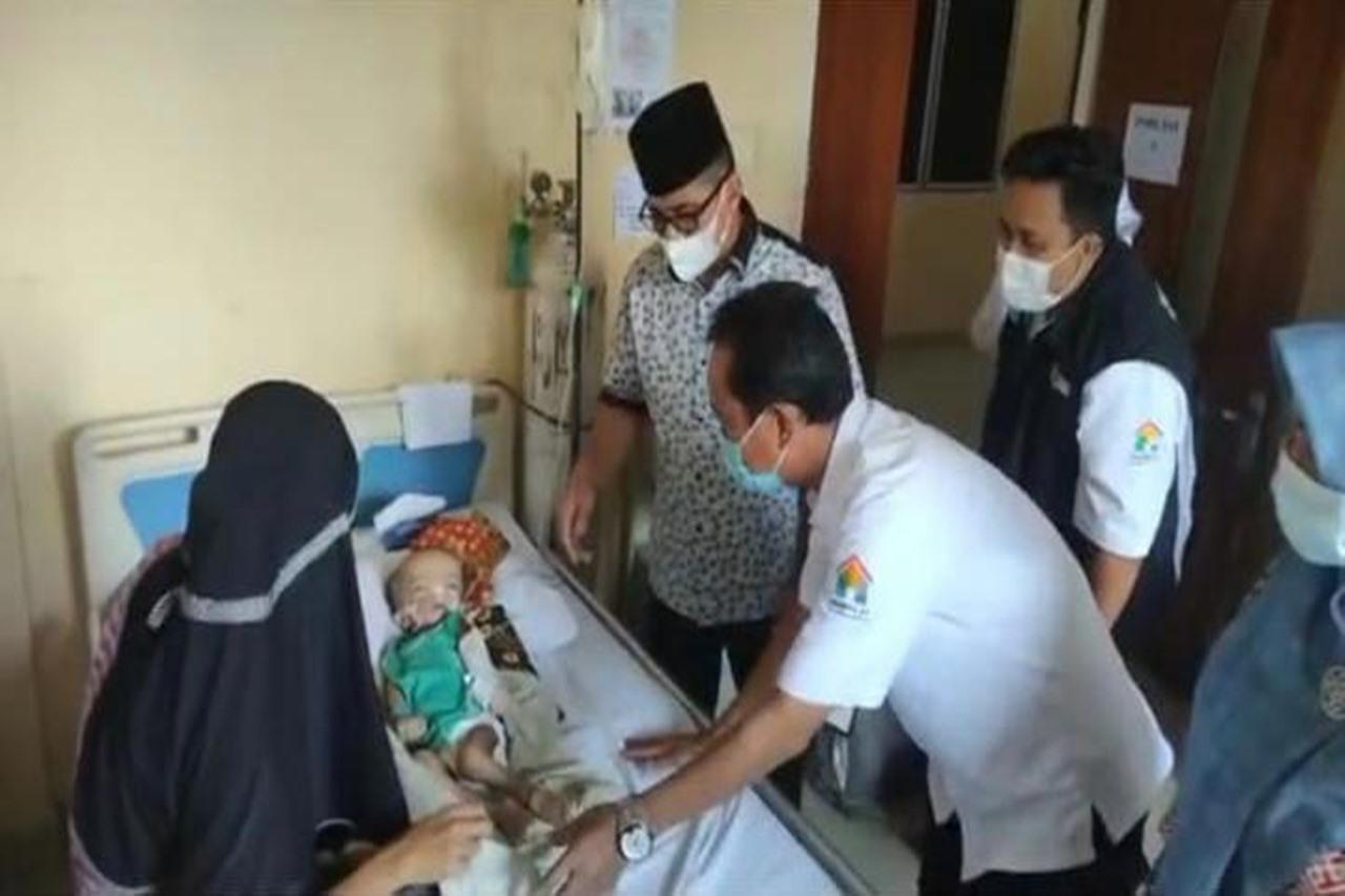 Kemensos Respon Kasus Bayi Penderita Gizi Buruk di Indragiri Hilir